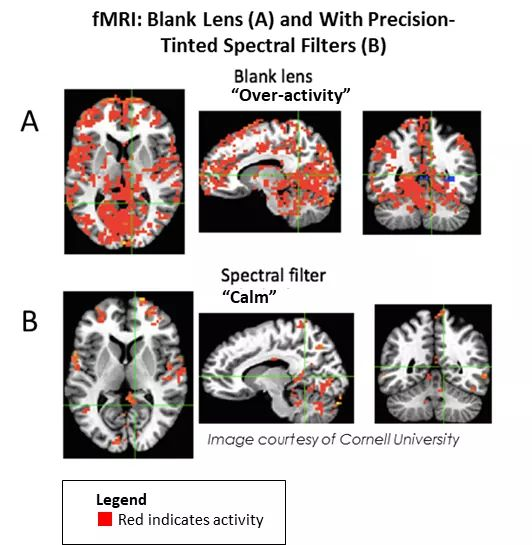 efficient brain fMRI- Blank Lens A and with Precision-Tinted Spectral Filters B